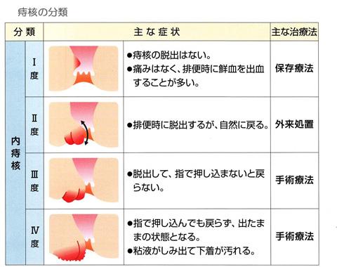 痔核の分類